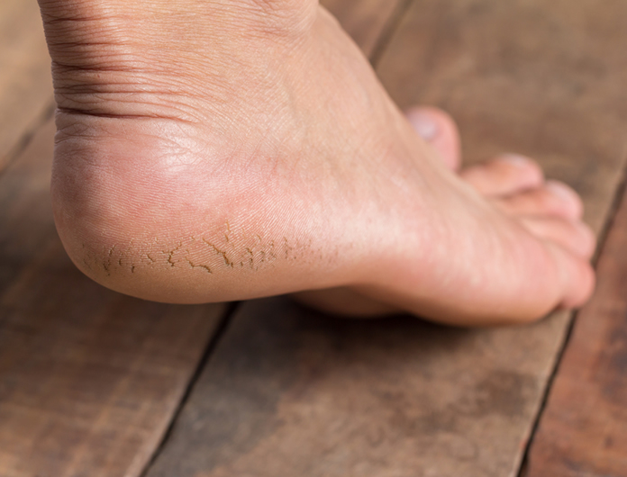 Athlete's Foot - Feet First Podiatry Clinic, Thame, Oxfordshire