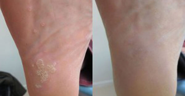 Verrucae Treatment, Needling - Feet First Podiatry Clinic, Thame, Oxfordshire